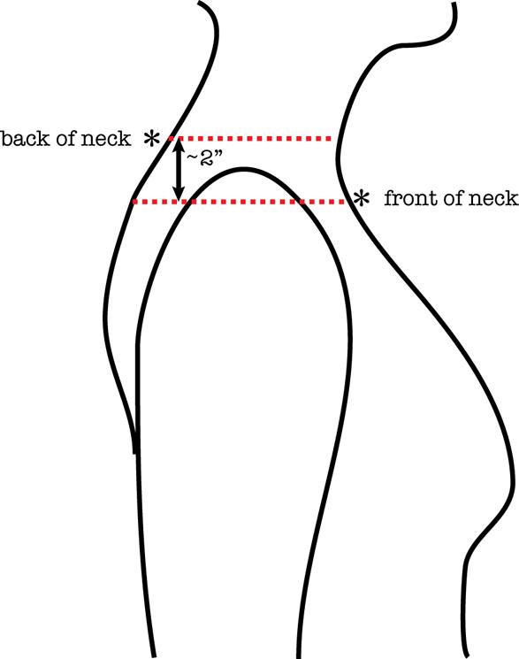 sideways sisters | skeinology, Cephalic Vein